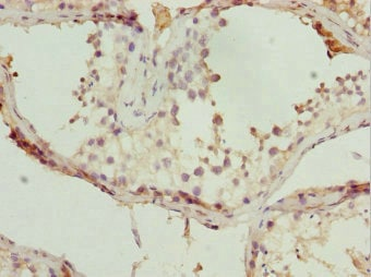 Immunohistochemistry (Formalin/PFA-fixed paraffin-embedded sections) - Anti-TBP like protein TLP antibody (ab238565)