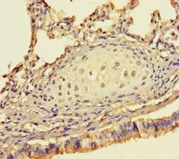 Immunohistochemistry (Formalin/PFA-fixed paraffin-embedded sections) - Anti-DSS1 antibody (ab238570)