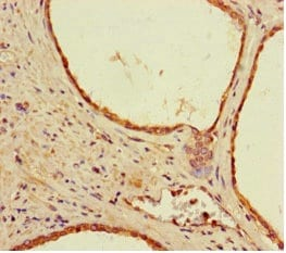 Immunohistochemistry (Formalin/PFA-fixed paraffin-embedded sections) - Anti-DSS1 antibody (ab238570)