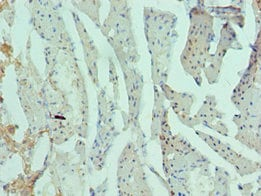 Immunohistochemistry (Formalin/PFA-fixed paraffin-embedded sections) - Anti-Rad51D antibody (ab238579)