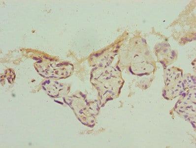 Immunohistochemistry (Formalin/PFA-fixed paraffin-embedded sections) - Anti-Gankyrin antibody (ab238590)