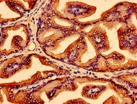 Immunohistochemistry (Formalin/PFA-fixed paraffin-embedded sections) - Anti-LSM1 antibody (ab238592)