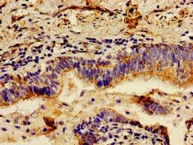 Immunohistochemistry (Formalin/PFA-fixed paraffin-embedded sections) - Anti-LCT antibody (ab238593)