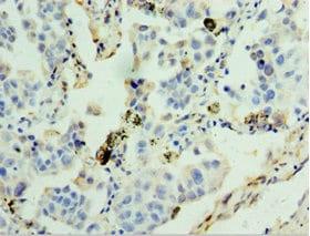 Immunohistochemistry (Formalin/PFA-fixed paraffin-embedded sections) - Anti-GSTA4 antibody (ab238608)