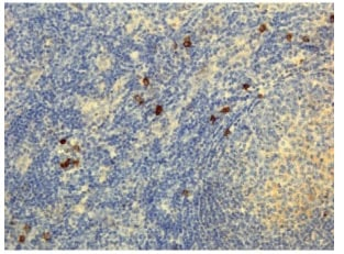 Immunohistochemistry (Formalin/PFA-fixed paraffin-embedded sections) - Rabbit monoclonal [RM120] Anti-Human IgG4 heavy chain (Biotin) (ab238617)