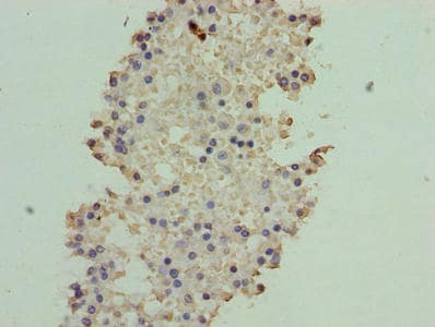 Immunohistochemistry (Formalin/PFA-fixed paraffin-embedded sections) - Anti-ATXN7L1 antibody (ab238644)