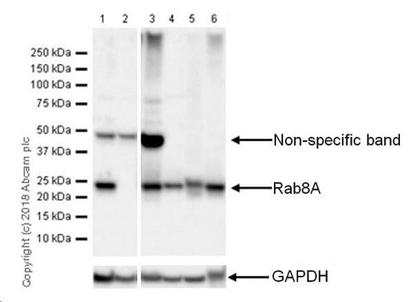 Western blot - Anti-RAB8A antibody [MJF-R22] - BSA and Azide free (ab238651)