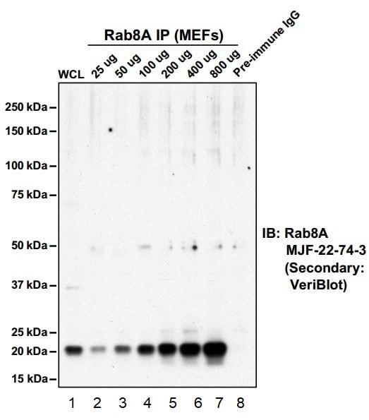 Immunoprecipitation - Anti-RAB8A antibody [MJF-R22] - BSA and Azide free (ab238651)