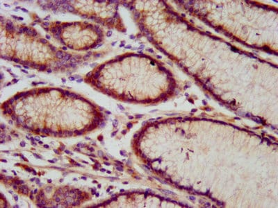 Immunohistochemistry (Formalin/PFA-fixed paraffin-embedded sections) - Anti-C17orf27 antibody (ab238677)