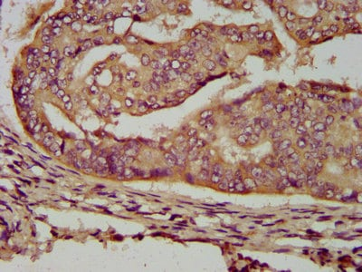 Immunohistochemistry (Formalin/PFA-fixed paraffin-embedded sections) - Anti-RTS antibody (ab238694)