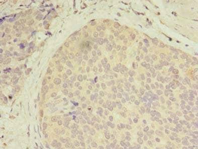 Immunohistochemistry (Formalin/PFA-fixed paraffin-embedded sections) - Anti-GCP2 antibody (ab238717)