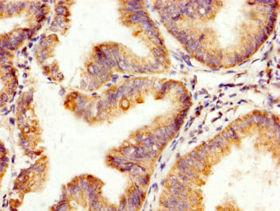 Immunohistochemistry (Formalin/PFA-fixed paraffin-embedded sections) - Anti-SP17 antibody (ab238720)