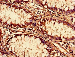 Immunohistochemistry (Formalin/PFA-fixed paraffin-embedded sections) - Anti-SF3B14 antibody (ab238724)