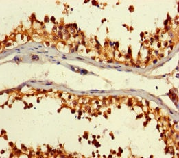 Immunohistochemistry (Formalin/PFA-fixed paraffin-embedded sections) - Anti-CSNK2A2 antibody (ab238728)