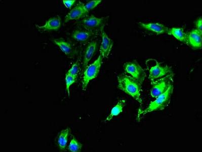 Immunocytochemistry/ Immunofluorescence - Anti-DNAJB14 antibody (ab238729)