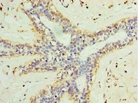 Immunohistochemistry (Formalin/PFA-fixed paraffin-embedded sections) - Anti-L3MBTL1 antibody (ab238731)