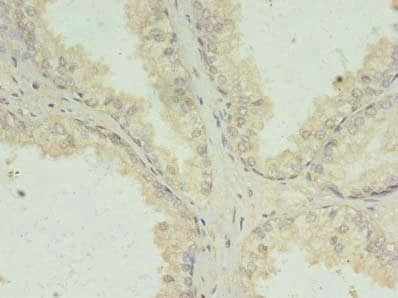 Immunohistochemistry (Formalin/PFA-fixed paraffin-embedded sections) - Anti-PACT (PKR activating protein) / PRKRA antibody (ab238734)