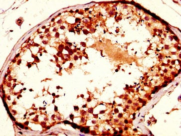 Immunohistochemistry (Formalin/PFA-fixed paraffin-embedded sections) - Anti-NUP93 antibody (ab238735)