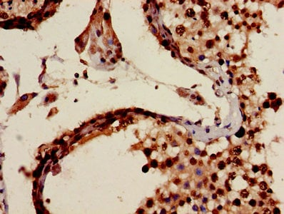 Immunohistochemistry (Formalin/PFA-fixed paraffin-embedded sections) - Anti-Melanoma Inhibitory Activity antibody (ab238737)