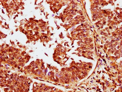 Immunohistochemistry (Formalin/PFA-fixed paraffin-embedded sections) - Anti-Calcineurin inhibitor antibody (ab238743)