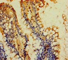 Immunohistochemistry (Formalin/PFA-fixed paraffin-embedded sections) - Anti-MGAT2 antibody (ab238762)