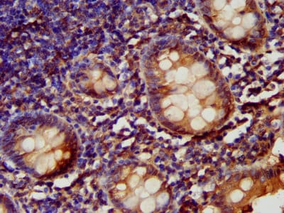 Immunohistochemistry (Formalin/PFA-fixed paraffin-embedded sections) - Anti-LARP6 antibody (ab238763)