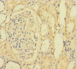 Immunohistochemistry (Formalin/PFA-fixed paraffin-embedded sections) - Anti-SPLASH antibody (ab238770)