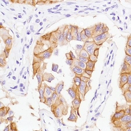 Immunohistochemistry (Formalin/PFA-fixed paraffin-embedded sections) - Anti-EGFR (mutated L858 R) antibody [SP125] - BSA and Azide free (ab238773)