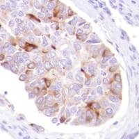 Immunohistochemistry (Formalin/PFA-fixed paraffin-embedded sections) - Anti-GCDFP 15 antibody [SP185] - BSA and Azide free (ab238776)