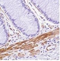 Immunohistochemistry (Formalin/PFA-fixed paraffin-embedded sections) - Anti-Caldesmon/CDM antibody [SP226] - BSA and Azide free (ab238782)