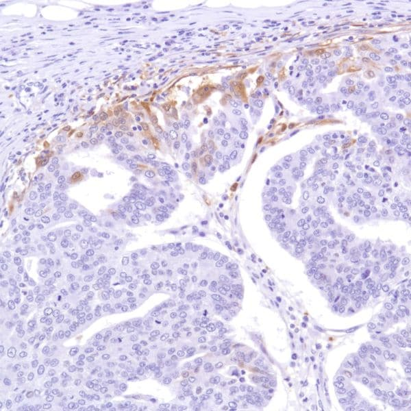 Immunohistochemistry (Formalin/PFA-fixed paraffin-embedded sections) - Anti-Indoleamine 2, 3-dioxygenase antibody [SP277] - BSA and Azide free (ab238785)