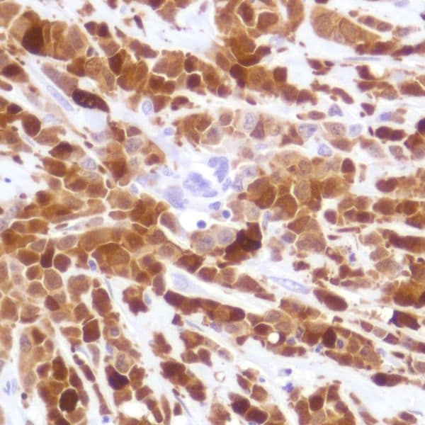 Immunohistochemistry (Formalin/PFA-fixed paraffin-embedded sections) - Anti-Indoleamine 2, 3-dioxygenase antibody [SP282] - BSA and Azide free (ab238788)