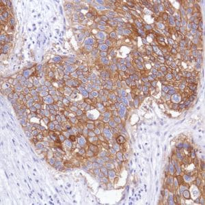 Immunohistochemistry (Formalin/PFA-fixed paraffin-embedded sections) - Anti-TROP2 antibody [SP294] - BSA and Azide free (ab238789)