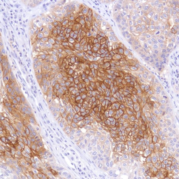 Immunohistochemistry (Formalin/PFA-fixed paraffin-embedded sections) - Anti-TROP2 antibody [SP295] - BSA and Azide free (ab238791)