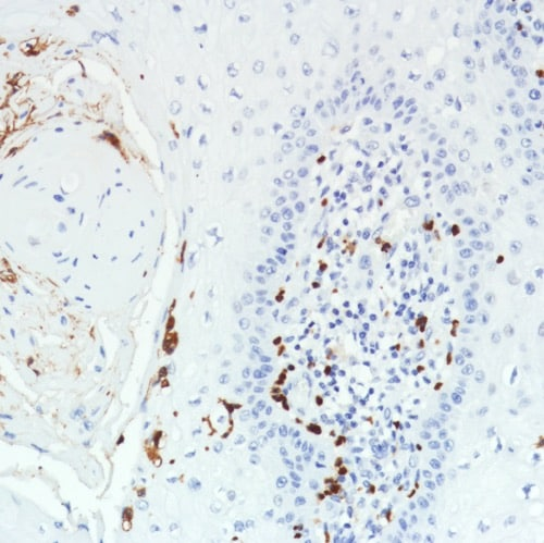 Immunohistochemistry (Formalin/PFA-fixed paraffin-embedded sections) - Anti-CD11b antibody [SP331] - BSA and Azide free (ab238794)