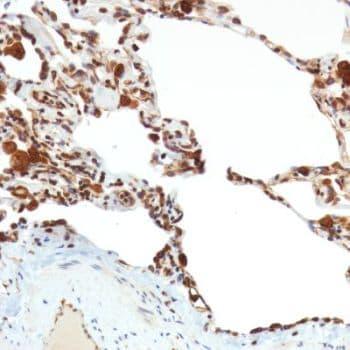 Immunohistochemistry (Formalin/PFA-fixed paraffin-embedded sections) - Anti-TMEM173 antibody [SP338] - BSA and Azide free (ab238795)