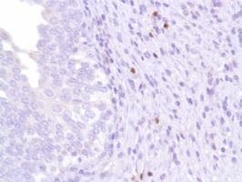 Immunohistochemistry (Formalin/PFA-fixed paraffin-embedded sections) - Anti-FOXP3 antibody [SP97] - BSA and Azide free (ab238809)