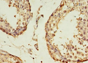 Immunohistochemistry (Formalin/PFA-fixed paraffin-embedded sections) - Anti-B3GNT5 antibody (ab238819)
