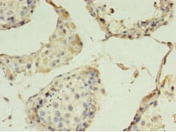 Immunohistochemistry (Formalin/PFA-fixed paraffin-embedded sections) - Anti-Claudin 15 antibody (ab238820)