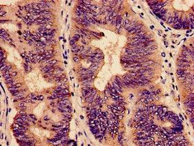 Immunohistochemistry (Formalin/PFA-fixed paraffin-embedded sections) - Anti-YBEY antibody (ab238821)