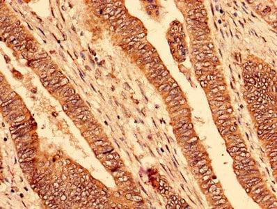 Immunohistochemistry (Formalin/PFA-fixed paraffin-embedded sections) - Anti-PAFAH1B2 antibody (ab238828)