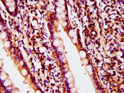 Immunohistochemistry (Formalin/PFA-fixed paraffin-embedded sections) - Anti-POLD2 antibody (ab238834)
