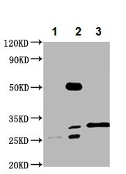 Immunoprecipitation - Rabbit Polyclonal to SMNDC1 (ab238846)