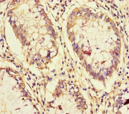 Immunohistochemistry (Formalin/PFA-fixed paraffin-embedded sections) - Anti-ASC-2/NRC antibody (ab238848)