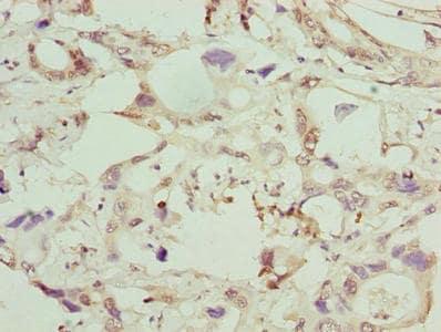 Immunohistochemistry (Formalin/PFA-fixed paraffin-embedded sections) - Anti-GGTL1 antibody (ab238851)
