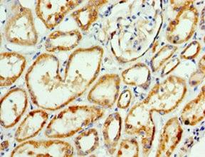 Immunohistochemistry (Formalin/PFA-fixed paraffin-embedded sections) - Anti-AP1M2 antibody (ab238852)