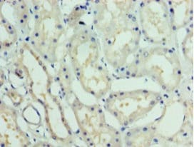 Immunohistochemistry (Formalin/PFA-fixed paraffin-embedded sections) - Anti-TTDA antibody (ab238855)