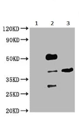 Immunoprecipitation - Anti-PIH1D1 antibody (ab238862)