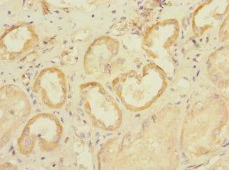 Immunohistochemistry (Formalin/PFA-fixed paraffin-embedded sections) - Anti-SLC28A1 antibody (ab238865)