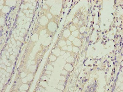 Immunohistochemistry (Formalin/PFA-fixed paraffin-embedded sections) - Anti-HIGD1B antibody (ab238867)